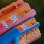 Ecocolordoppler: a cosa serve?